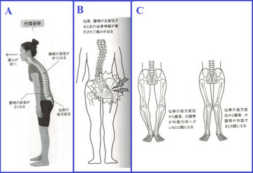 Bad_posture_3_2